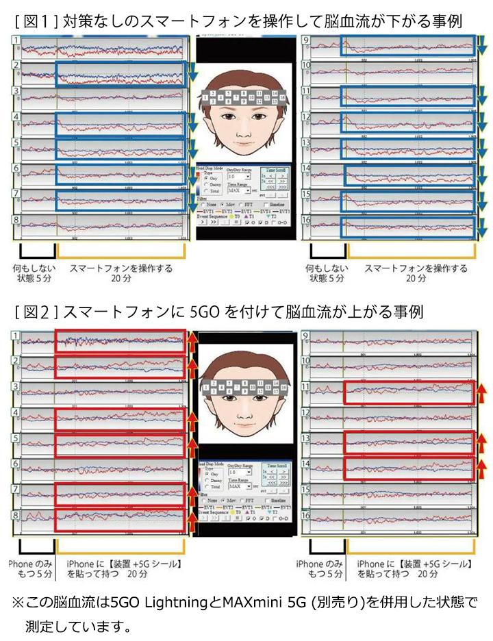 5GO Lightning(ゴーゴーライトニング)【丸山修寛シリーズ】